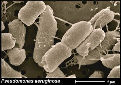 Patogénne baktérie z rodu Pseudomonas