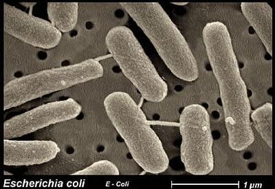 Baktérie z čelade Enterobacteriaceae