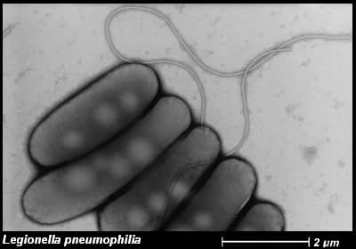 Patogénne baktérie z čelade Legionellaceae